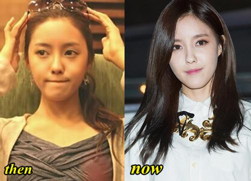 T-Ara Hyomin Before And After Plastic Surgery photo - 1