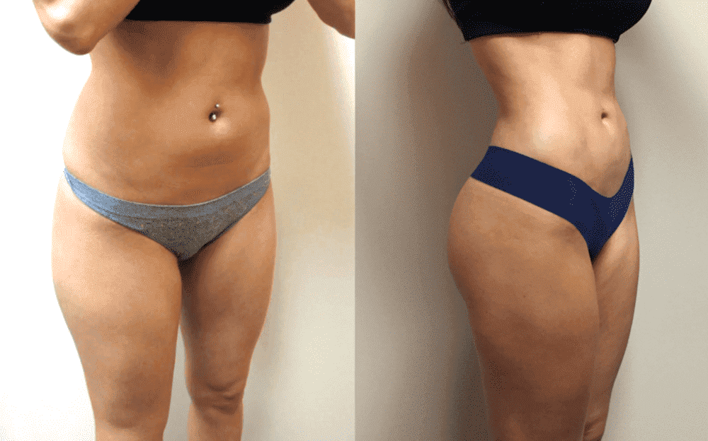 plastic surgery liposuction before and after photo - 1
