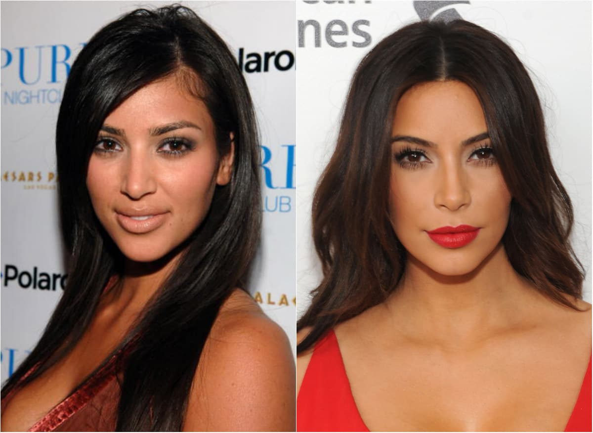 Kardashian Plastic Surgery Before And After 1
