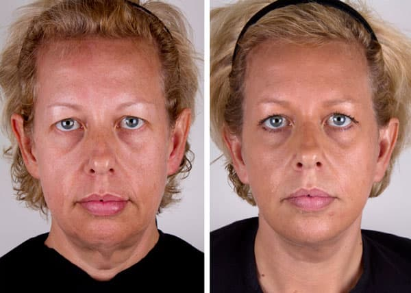 Plastic Surgery Jowls Before After Pictures 1