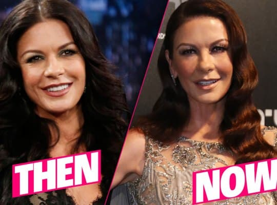 Catherine Zeta Jones Before Plastic Surgery 1