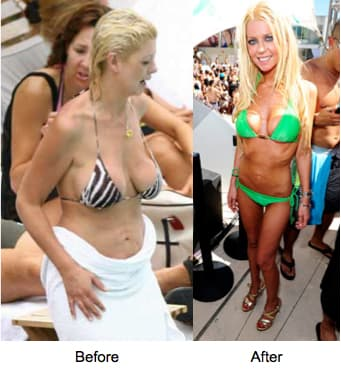 Costa Rica Plastic Surgery Before And After 1