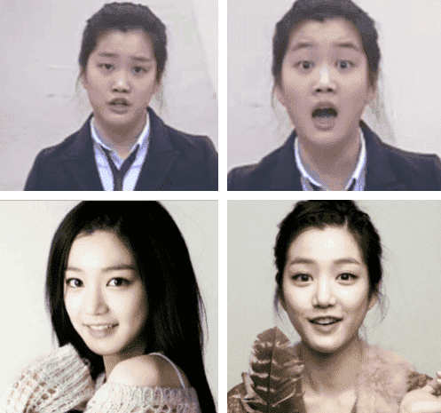 Kpop Idols Before And After Plastic Surgery 1