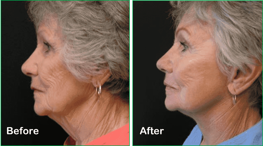 Plastic Surgery Neck Lift Before And After 1