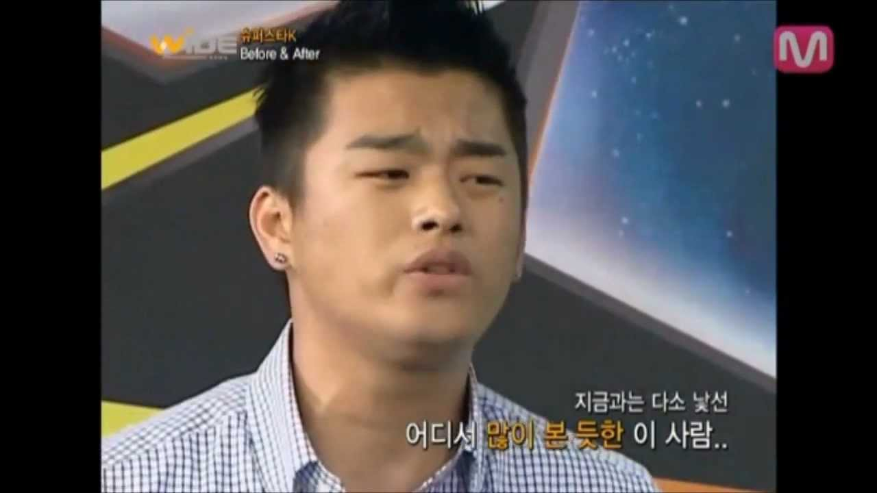 Seo In Guk Before And After Plastic Surgery 1