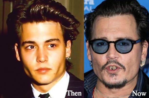 Tom Cruise Before And After Plastic Surgery 1