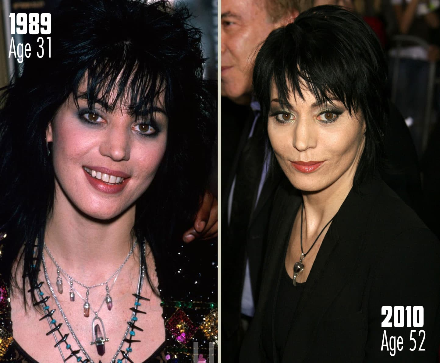 Joan Jett Before And After Plastic Surgery 1