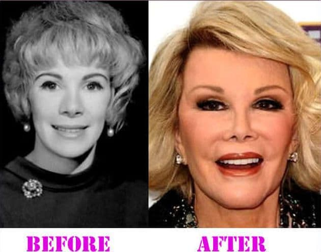 Joan Rivers Pictures Before Plastic Surgery 1