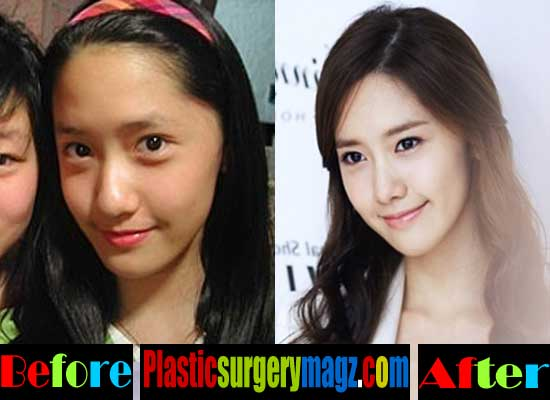 Yoona Plastic Surgery Before After Pictures 1