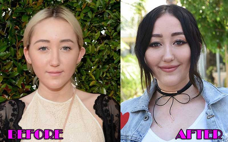 Noah Cyrus Before And After Plastic Surgery 1