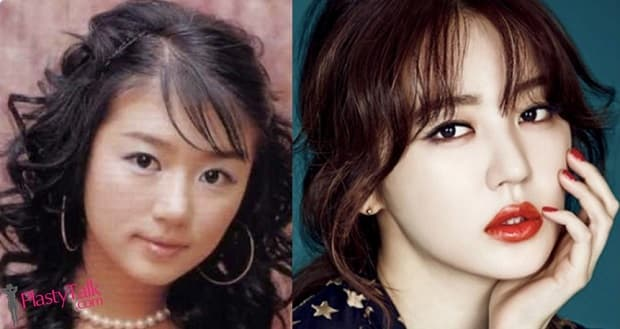 Before And After Plastic Surgery Kpop Stars 1