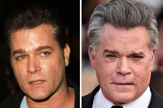 Before And After Plastic Surgery Ray Liotta 1