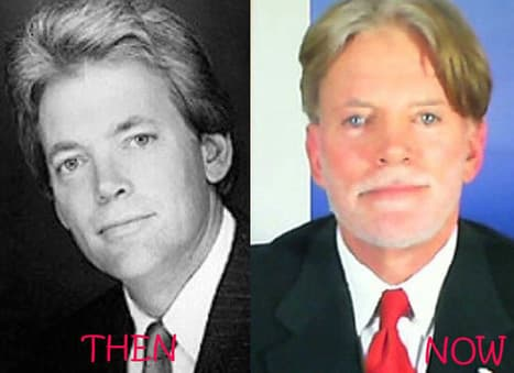 David Duke Before And After Plastic Surgery 1