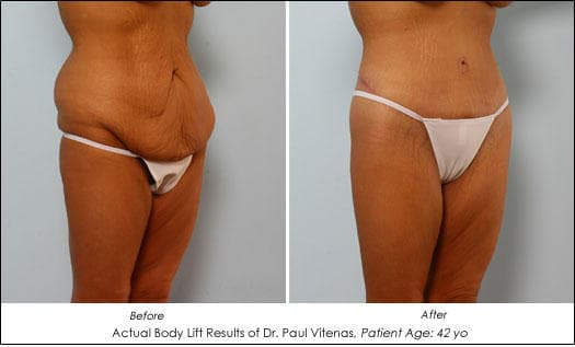 Plastic Surgery Before And After Loose Skin 1