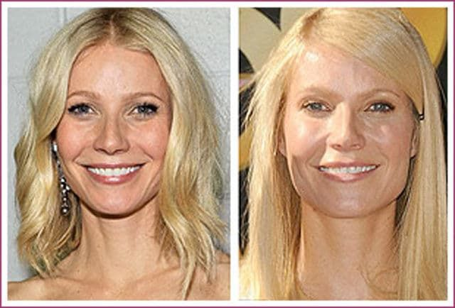 Suzanne Somers Before After Plastic Surgery 1