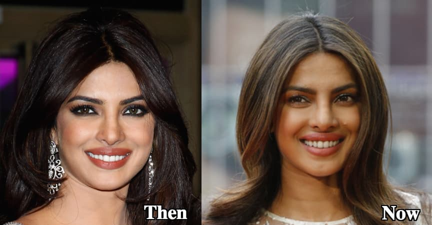 Sharp Nose Before And After Plastic Surgery 1