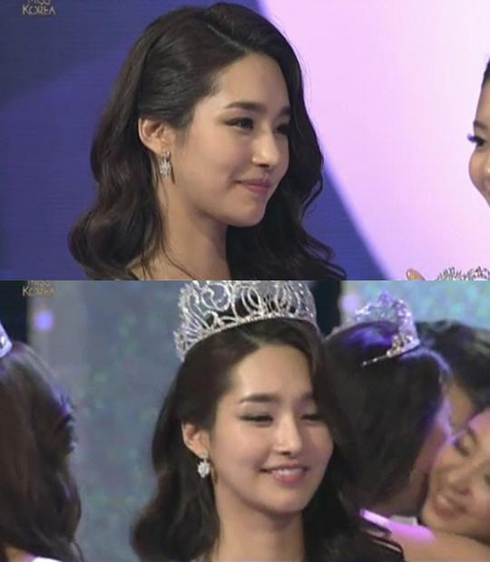 Miss Korea Before And After Plastic Surgery 1