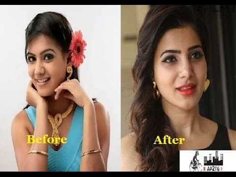 Nayanthara Before And After Plastic Surgery 1