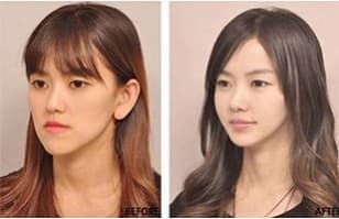 Opera Plastic Surgery Korea Before And After 1