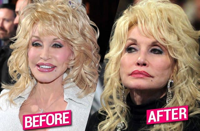 Dolly Parton Before She Had Plastic Surgery 1