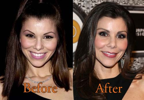 Heather Dubrow Before After Plastic Surgery 1