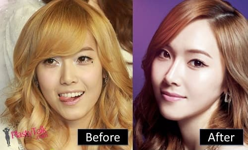 Jessi Kpop Plastic Surgery Before And After 1