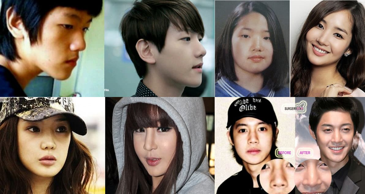 Kim Hansol Before And After Plastic Surgery 1
