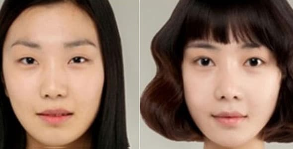 Korean Extreme Plastic Surgery Before After 1