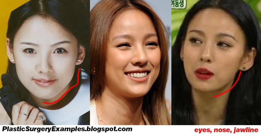 Lee Da Hae Before And After Plastic Surgery 1