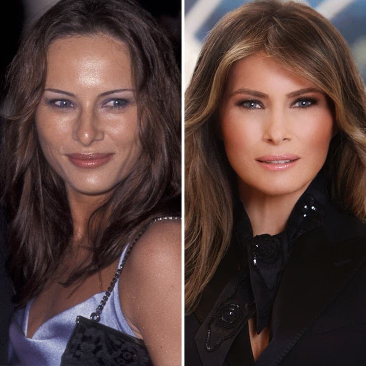 Melania Trump Before And After Plastic Surgery photo - 1
