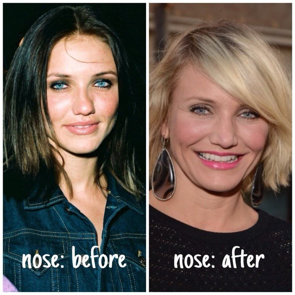 Nose Job Plastic Surgery Men Before And After photo - 1