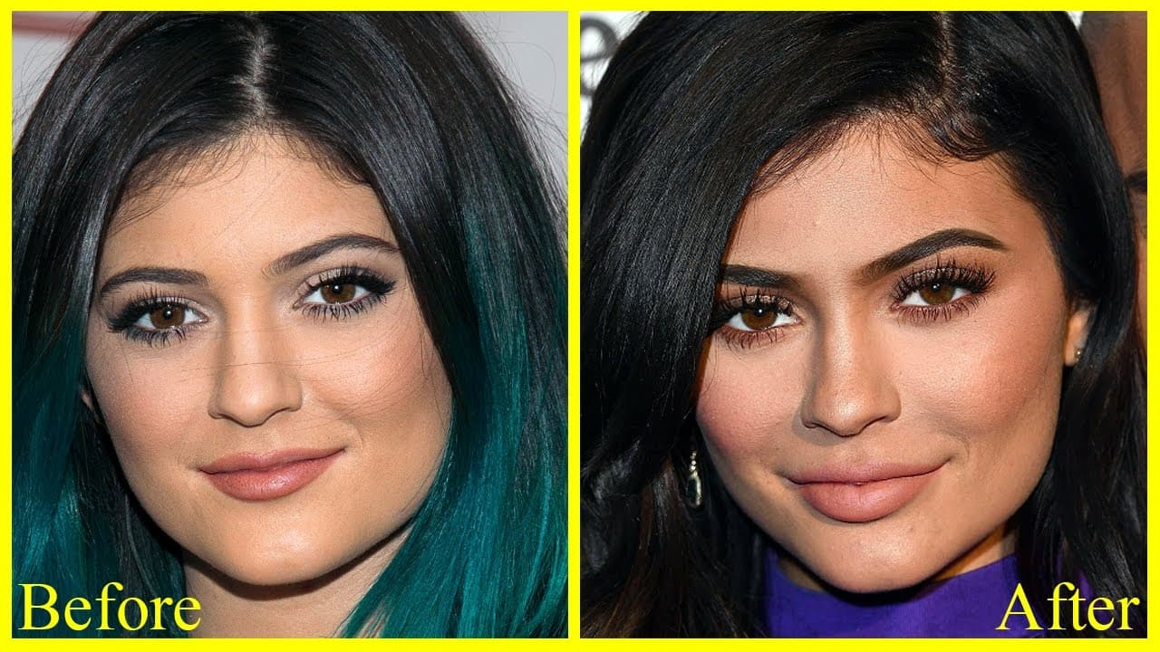 Before And After Kylie Jenner Plastic Surgery photo - 1