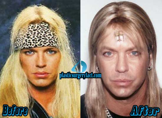 Bret Michaels Plastic Surgery Before And After photo - 1