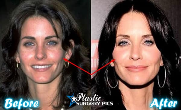 Courteney Cox Before And After Plastic Surgery photo - 1