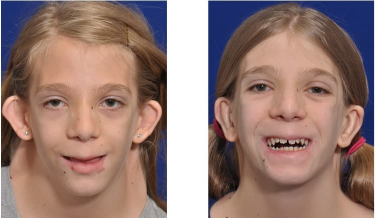 Down Syndrome Plastic Surgery Before And After photo - 1