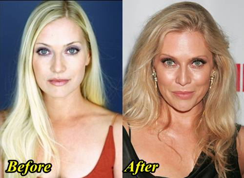 Emily Procter Before And After Plastic Surgery photo - 1