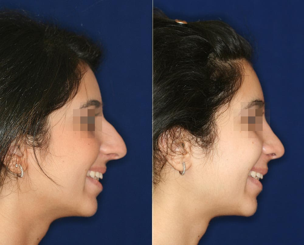 Questions To Ask Before Facial Plastic Surgery photo - 1