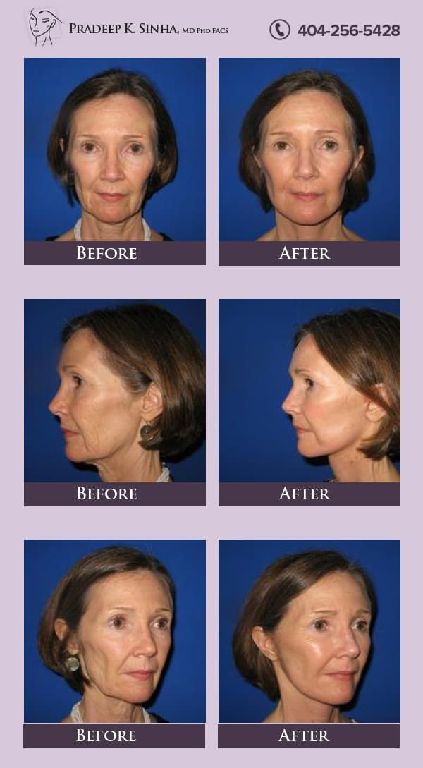 Sinha Plastic Surgery Atlanta Before And After photo - 1