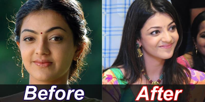 Plastic Surgery Before And After In Sri Lanka photo - 1