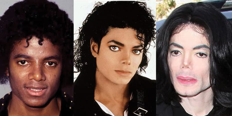 Michael Jackson Plastic Surgery Before After 1