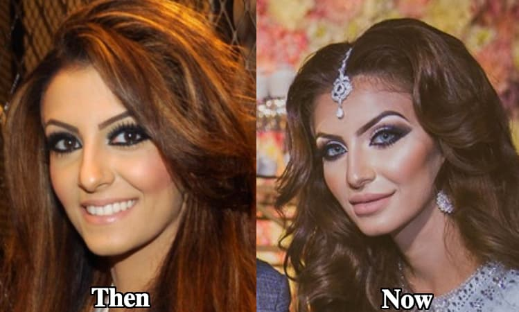Faryal Makhdoom Plastic Surgery Before After 1