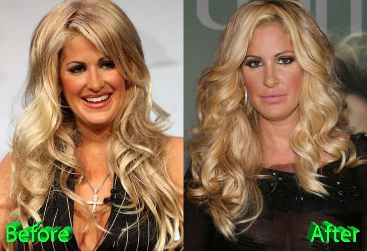 Kim Zolciak Before And After Plastic Surgery 1