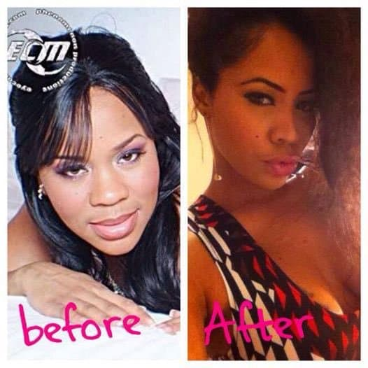 Lira Galore Before And After Plastic Surgery 1