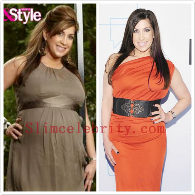 Weight Loss Plastic Surgery Before And After 1