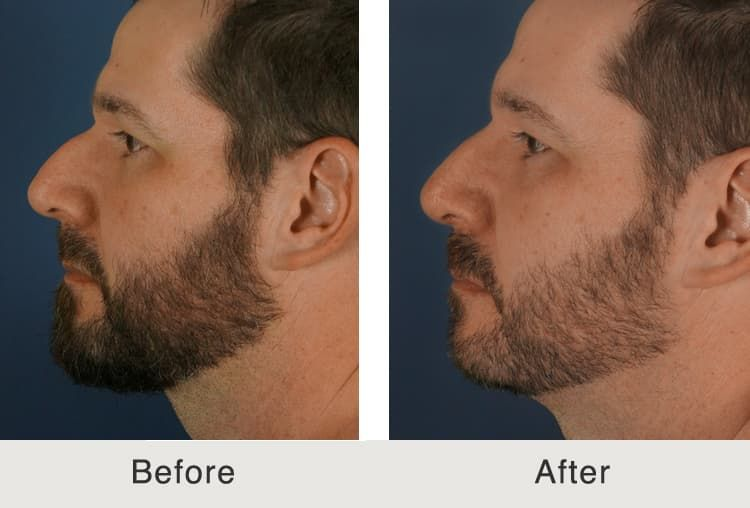 Male Facial Plastic Surgery Before And After 1