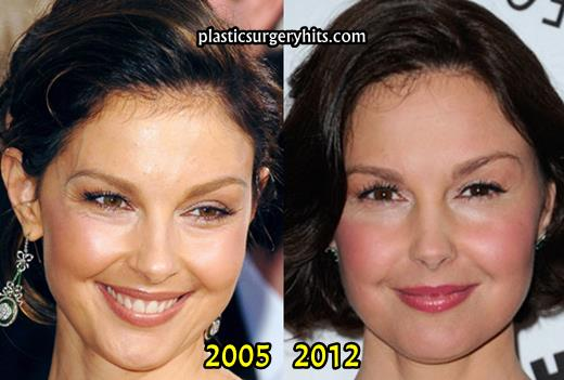 Ashley Judd Before And After Plastic Surgery 1