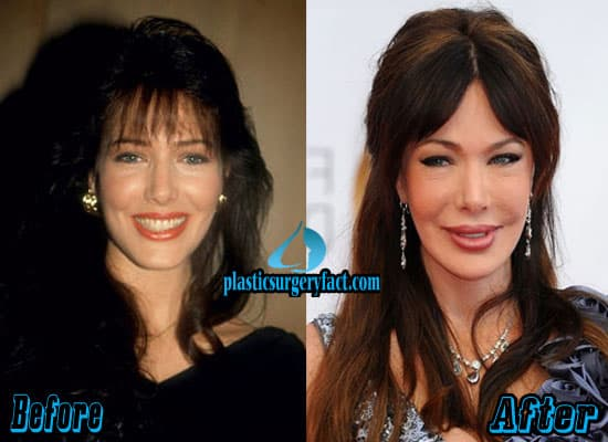 Hunter Tylo Before And After Plastic Surgery 1