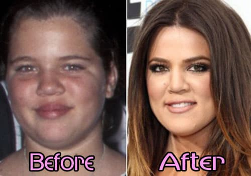 Halle Berry Before And After Plastic Surgery 1