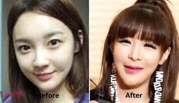 Korean Idol Plastic Surgery Before And After 1