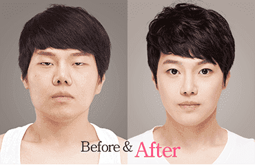 Korean Plastic Surgery Before And After Eyes 1